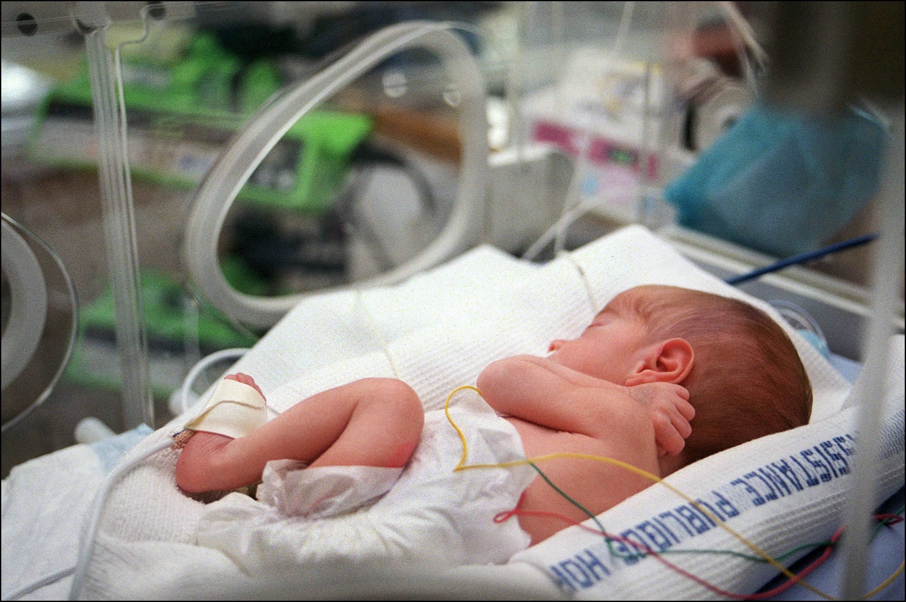 Naujagimių aspiratorius tinkamai valo kūdikio skardą